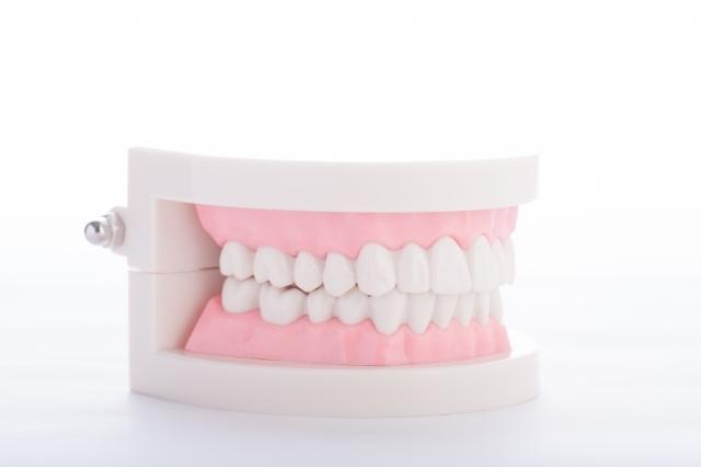 歯を失ってしまった方