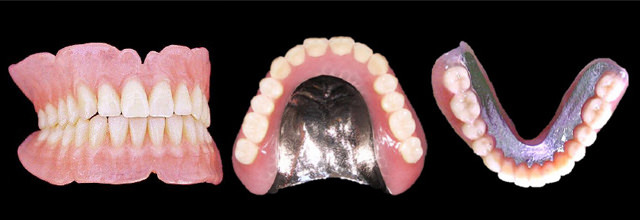 金属床義歯(丈夫で使いやすい入れ歯)