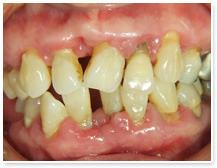 進行した歯周病